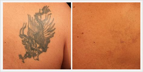 tattoo removal shrewsbury before after gallery the plastic surgery center