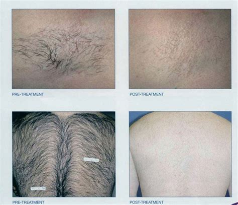 electrolysis brazilian laser hair removal new radiance cosmetic center of palm