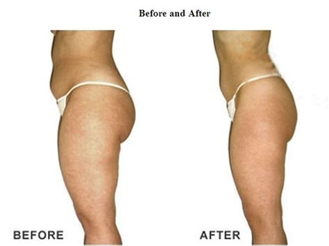 Detox Your Cavitations by What Is Cavitation Slimming And Fir Sauna Blanket Treatment