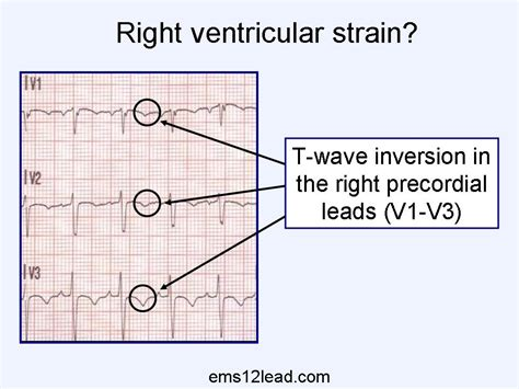 strain pattern ecg definition 60 year old male cc syncope ems 12 lead
