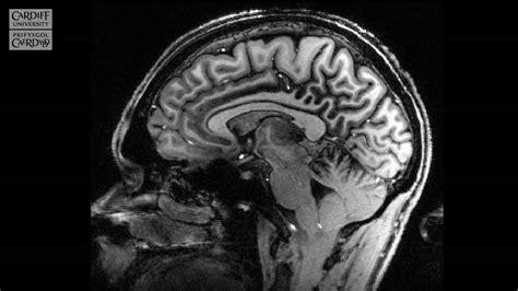 7 tesla mri cardiff brain research imaging