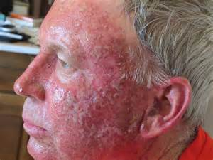 actinic keratosis country chatter