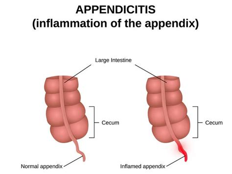 home remedies for appendicitis organic facts