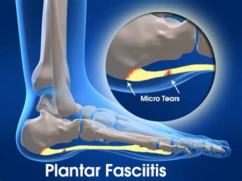 What Is Planter Fascitis by Plantar Fasciitis Your Plymouth Area Chiropractor For