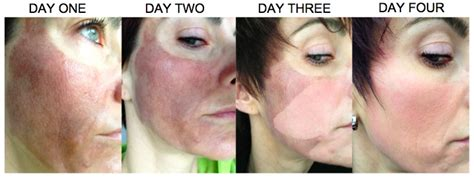 e one ipl session before and after on man and woman face combining dermaroller with ipl and skinbrite peel