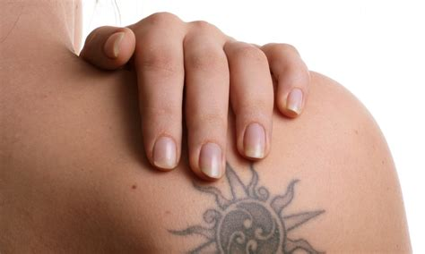 tattoo removal swansea newskin removal up to 70 swansea ma groupon