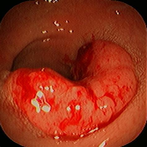 tumor bleeding colon colon cancer bleeding colon endoscopic images