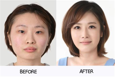 the world capital of plastic surgery the new yorker korea the transhumanist capital of the world recharge