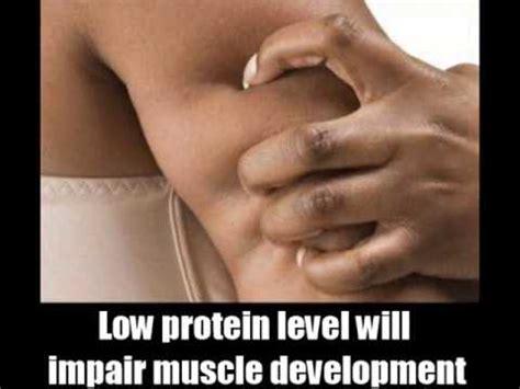 s protein deficiency symptoms 7 protein deficiency symptoms