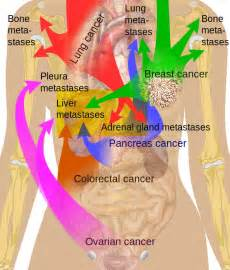 Types of cancer colon cancer and metastatic colon cancer colon dog