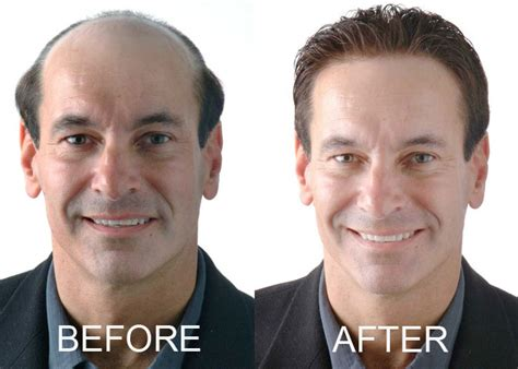 mens hair extensions before and after image