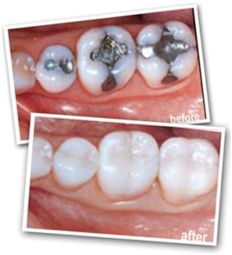 dental white fillings south harrow abbey dental south harrow