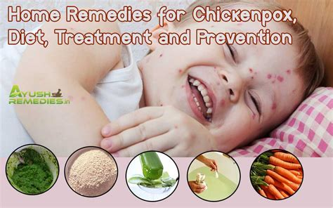 home remedies for chickenpox diet treatment and prevention