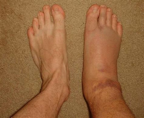 what to do for swollen feet after c section swollen ankles johny fit