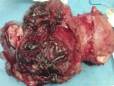 uterine scarring after c section placenta increta in week 10 of pregnancy with consecutive