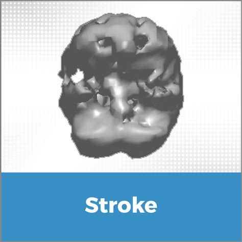 stroke mood swings stroke cerescan
