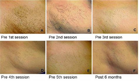 diode laser hair removal before and after 808nm diode laser permanent tria laser hair removal system