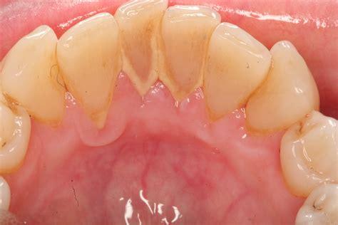 how to treat tonsillitis naturally alternative medicine
