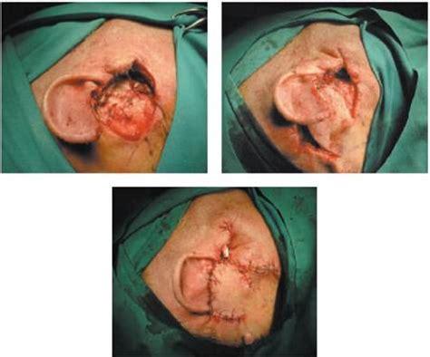 tumore orecchio interno sintomi tumori dell orecchio esterno