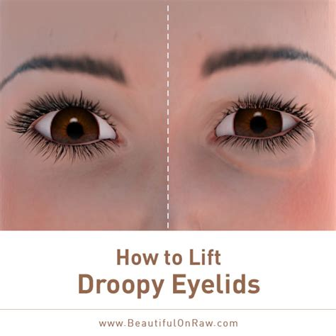 Detox Drooping Eye by How To Lift Droopy Eyelids Beautiful On