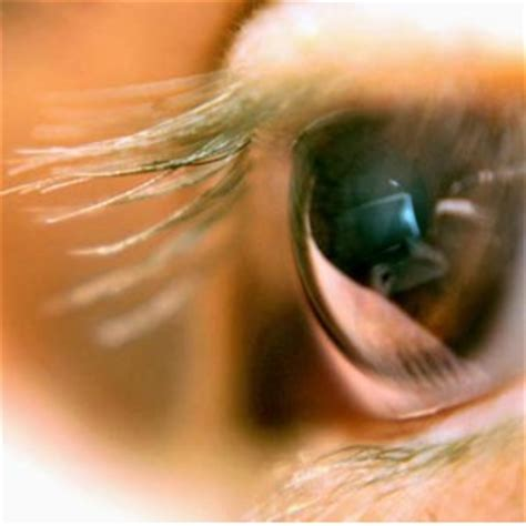 eye problems identifying myasthenia gravis symptoms symptoms of myasthenia gravis home