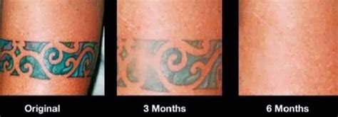 tattoo removal options 14 best tattoos removed images on