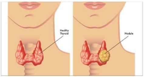 alimentazione per tiroide ecco la dieta perfetta per regolare la tiroide e dimagrire