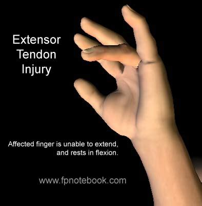 thumb laceration thoughts foundation tendon injuries
