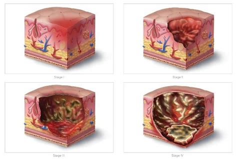 how to treat bed sores nursing homes pressure ulcers bed sores expert article