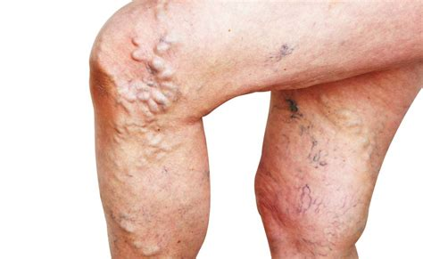 assorbenti interni rischi quelle fastidiose vene varicose pazienti it