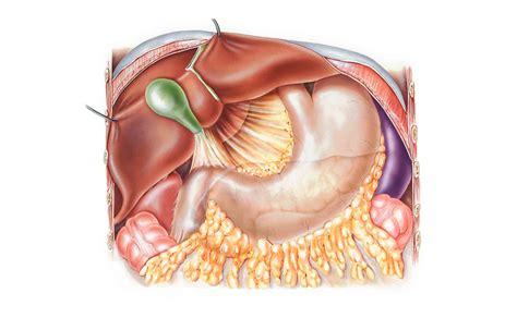 alimentazione senza cistifellea senza colecisti o cistefellea cosa succede il chirurgo