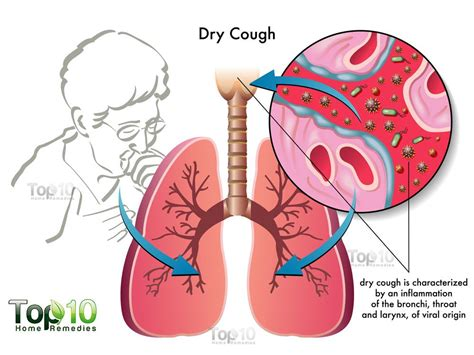 cough remedy home remedies for cough top 10 home remedies