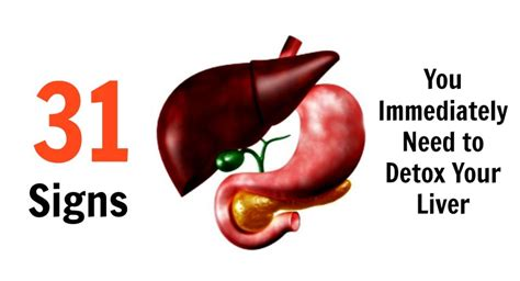 How To Detox Immediately by 31 Signs You Need To Immediately Detox Your Liver
