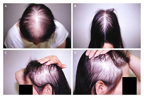 hair pattern test hair loss in women nejm