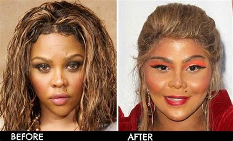 Plastik Naso worst plastic surgery before and after photos cosmetic
