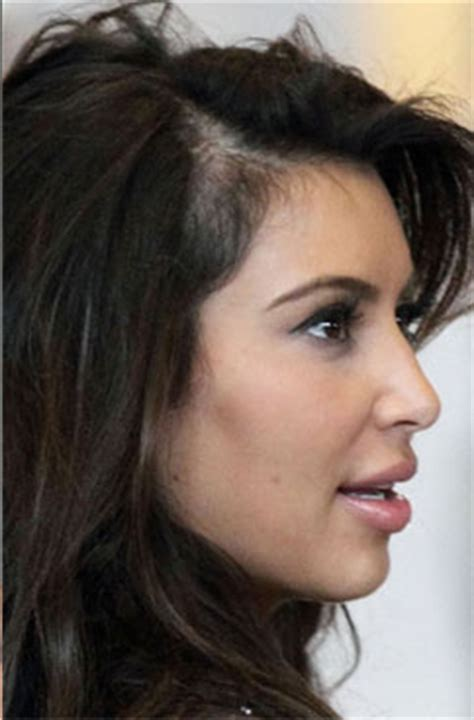 celebrity hair growth image gallery neve cbell alopecia