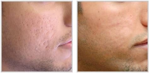 Acne Treatment Series acne treatment raleigh nc synergy spa