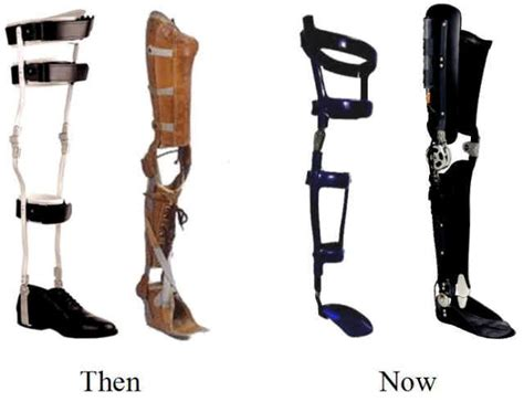 leg brace then and now leg braces devotee legs models and then and now