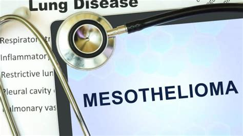 Compensation Mesothelioma by Mesothelioma Disease Claim Uk Lung Abdominal