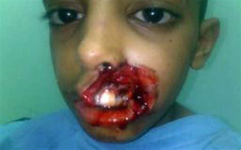 house dog bite dog bites off child s upper lip emirates 24 7