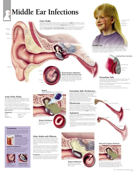 ear chart scientific publishing middle ear infections chart