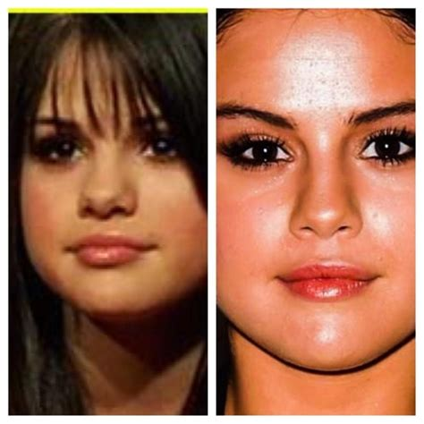 Did Get A Nose by Did Selena Gomez Get A Nose