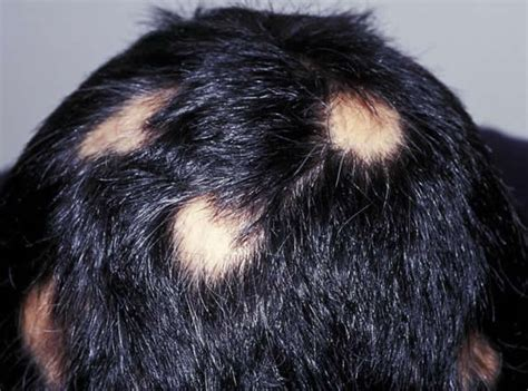 hair loss and itching thinning hair and itchy scalp