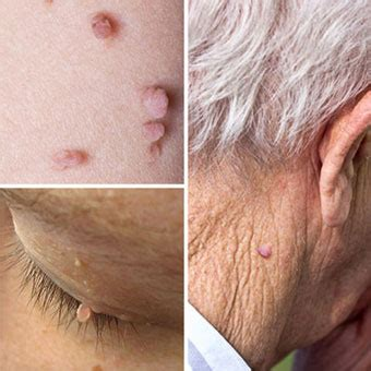 what does a older mature vigna look like how to remove skin tag causes get rid of skin tags