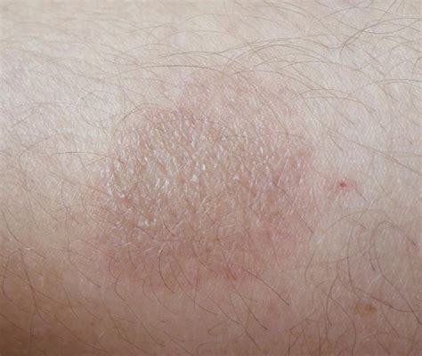 Rug Burn Scar by Rug Burn Scar Rugs Ideas