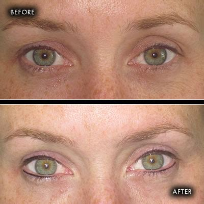 tattoo eyebrows belfast before and after photographs semi permanent make up