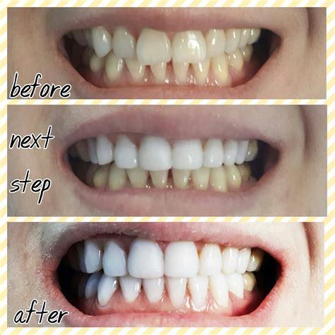 Pemutihan Gigi Di Dokter Gigi senyum putih cemerlang dengan veneer gigi hanya di audy