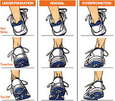 foot assessment for running shoes the foot and ankle guide evaluating gait and recommending
