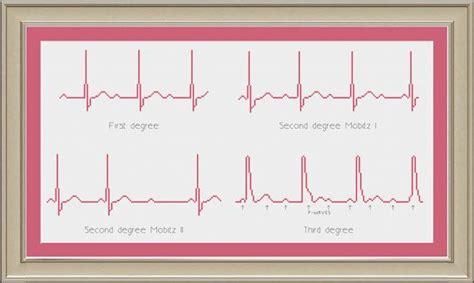 heart ecg pattern heart block ekg rhythms nerdy cross stitch pattern