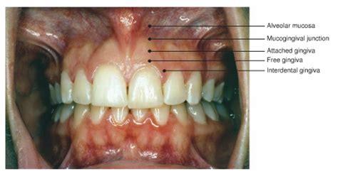 foundations  periodontics chapter   clark college